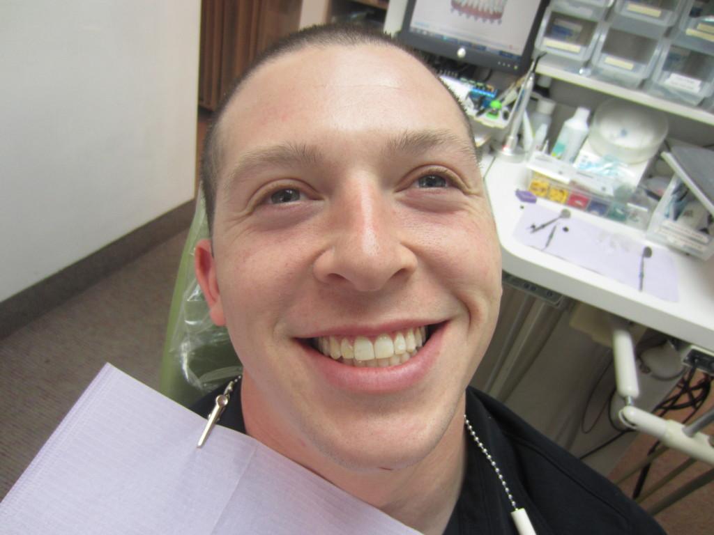 Josh After Invisalign