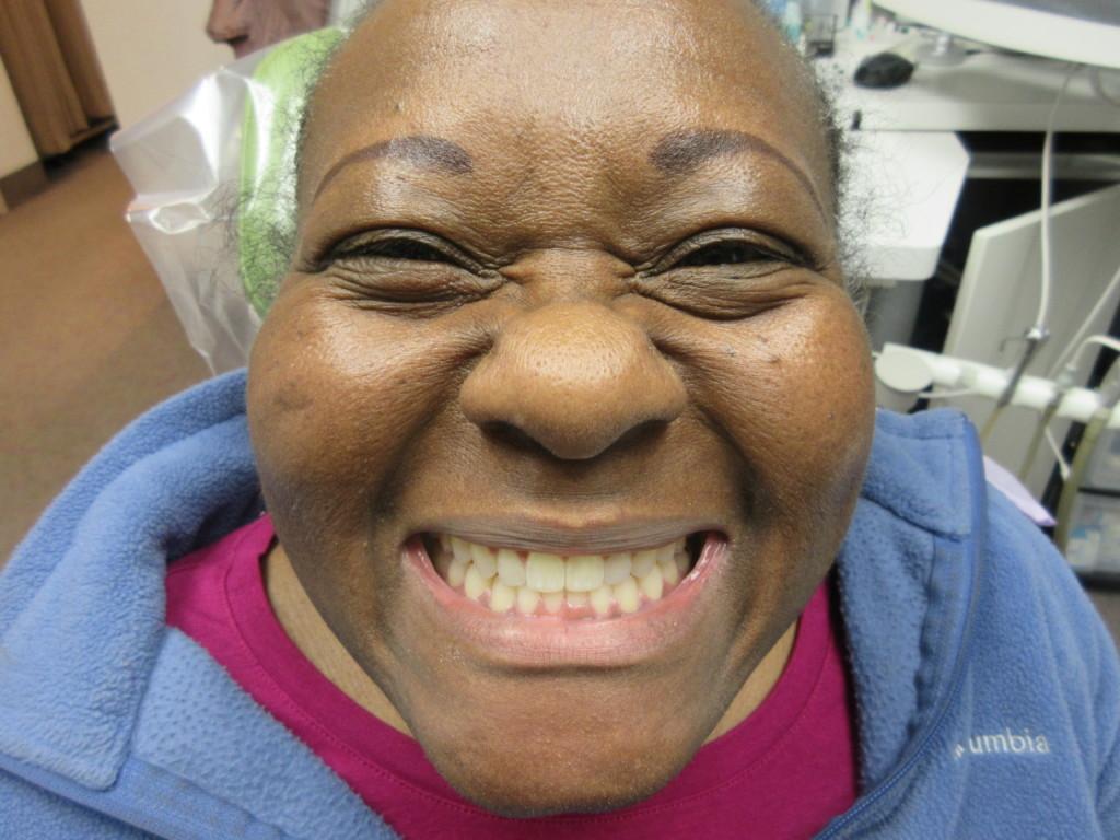 Anita after Invisalign