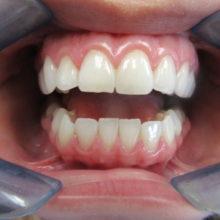 Judy's Teeth Before Invisalign