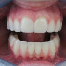 Rachel's Teeth After Invisalign
