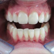 Rachel's Teeth Before Invisalign