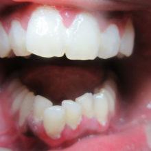 Ihas Teeth Before Invisalign