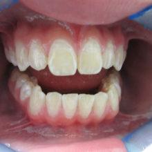 George's Teeth before Invisalign