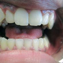 Shalini's teeth before Invisalign