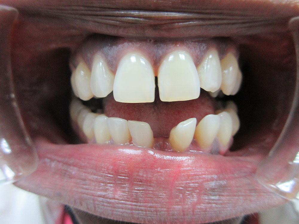 Marie's teeth before Invisalign
